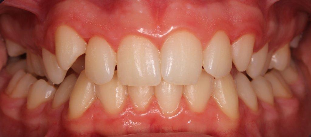 ortodoncia1-1