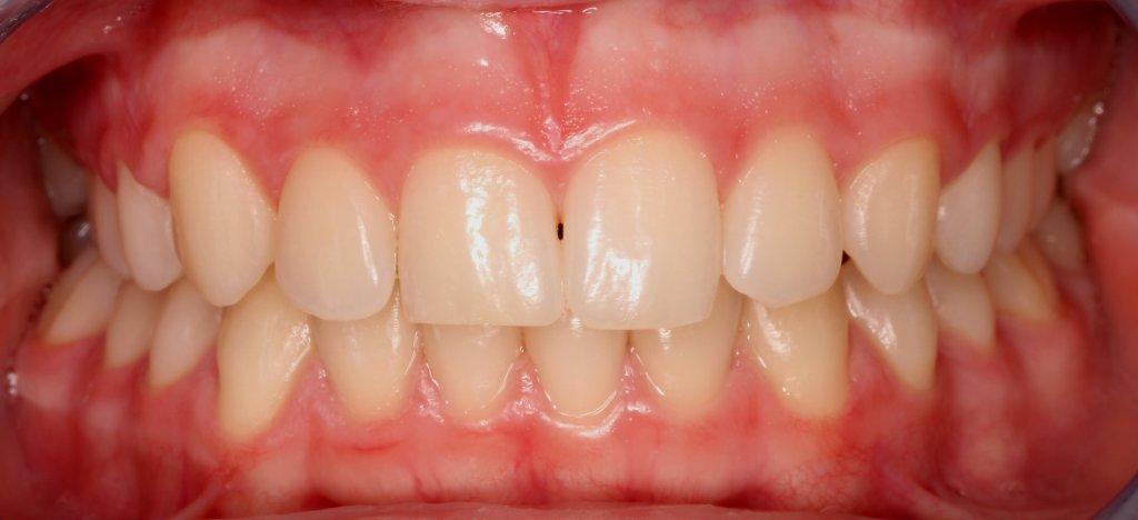 ortodoncia1-2