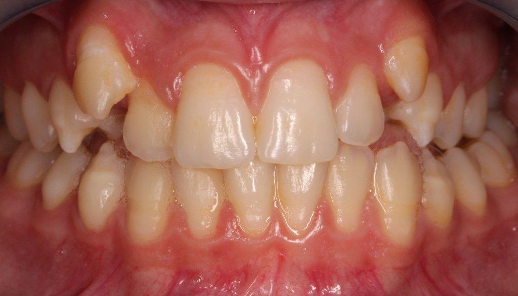 ortodoncia2-1