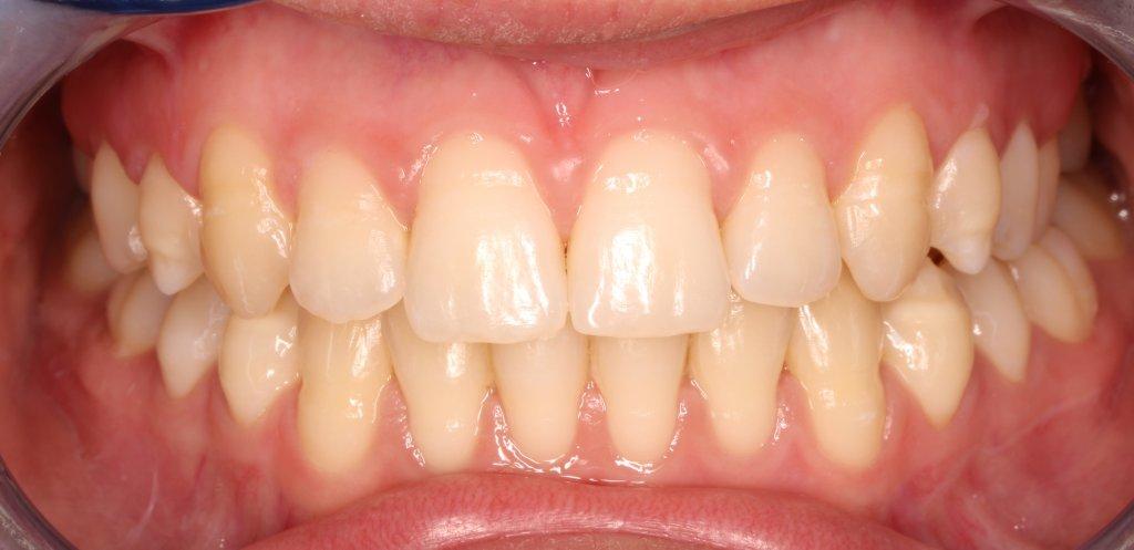 ortodoncia2-2