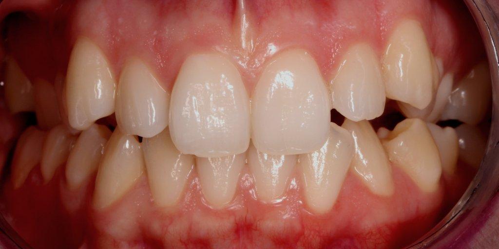 ortodoncia3-1