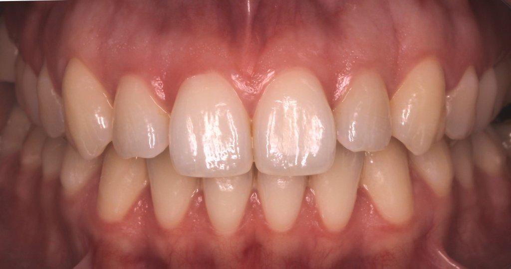 ortodoncia3-2